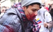 Protester got shot in the mouth by police.