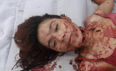 Young Asian Woman Found Nude Dead With Slit Throat