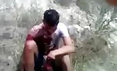 After effects of machete fight
