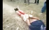 Leg Chopped Off with Axe