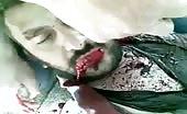 Iraqi Guy Shot and Breathing Last Moments