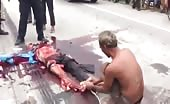 Victim of accident in Cambodia