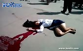 Girl Laying Dead Leaking A Lot Of Blood