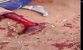 Man With Deep Leg Wound After Machete Fight