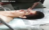 Shocking Footage - Wife Stabs Husband In The Eye