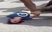 Motorcyclist Hits Car And Gets Head Distorted