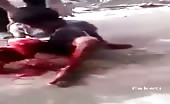 Terrible Road Accident Indian Boy