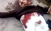 Syria - Mangled Bodies Lays in Street