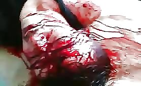 Bloodied Dead Body Of Syrian Guy