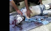 2nd Footage of Severe wounded Civilians (Graphic Content)