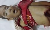 Dead Syrian Boy With Destroyed Abdomen