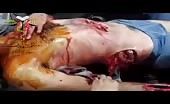 Severely Wounded Man