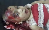 Shocking Footage Of Wounded Infant (Graphic Content)