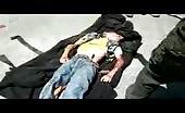 Boy Ran Over By A Bus In Yemen
