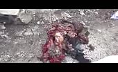 Mangled Children In Syria