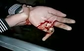 Injured Hand With Broken Finger!