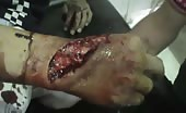 Severe Hand Cut In Knife Fight