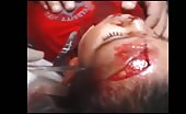 Child With Nasty Head Injury