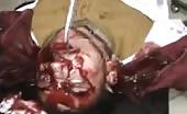 Massacre Of Civilian