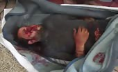 One Of The Dead In Bombing In Syria