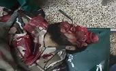 Killed In indiscriminate shelling