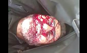 Victim of Assad Gangs