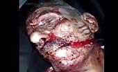 Killed In Missile Strike