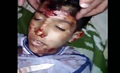 Young Syrian boy, killed by shrapnel