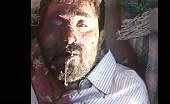 Victim of Bombing On Syrian City