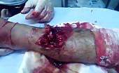 Severe Leg Wound