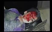 A young boy suffers from injuries