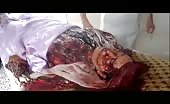 Victim of Indiscriminate Shelling – 2
