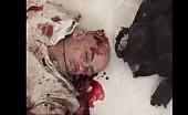 Brutally Killed In Bombing – 22