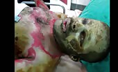 Severely Injured in Bombardment