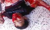 Killed By Army Bombing
