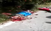 Man Severely Injured In Motorcycle Accident
