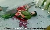 Severely injured Vietnamese Policeman