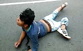 Traffic Accident Victim with Twisted Leg