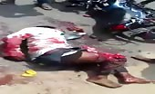 Legs Crushed In Motorbike Accident